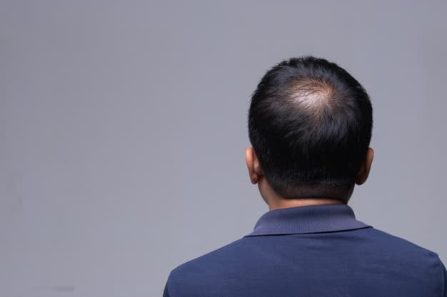 What to expect during a Scalp Micropigmentation Consult