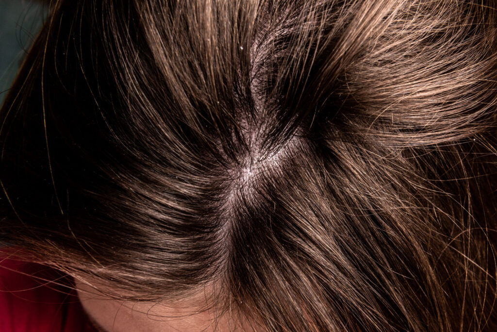 Research on Scalp Micropigmentation