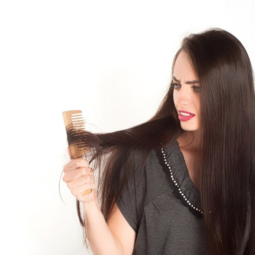 Hair Loss Overview